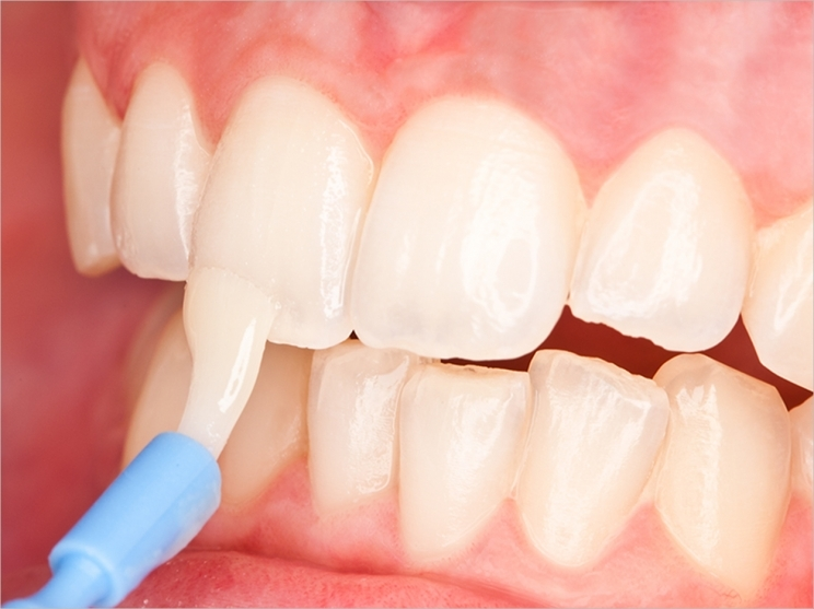 fluoride varnish minerals oral care walla walla dental care dr. gantz college place dentist