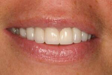 male smile makeover 2 after